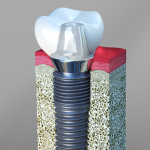 Dental Implants Sonoma Ca